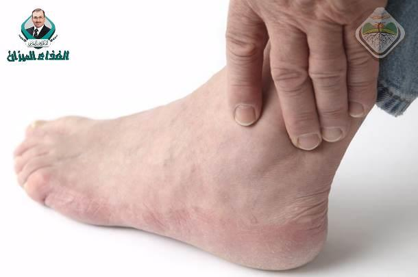 Foods that the gout patient must avoid